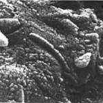 UN'IMMAGINE AL MICROSCOPIO  A SCANSIONE ELETTRONICA